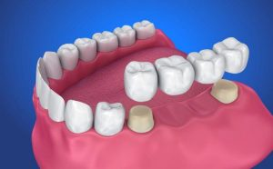 Dentist Mount Gambier