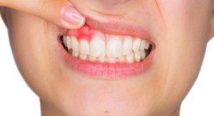 Emergency Dentist Newcomb