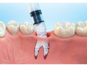 Newcomb Dentist